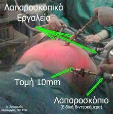 laparoskopiki kolektomi2